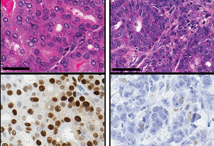 Photomicrograph images of a tumor region