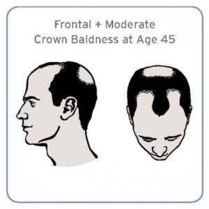 who is at risk for hair loss